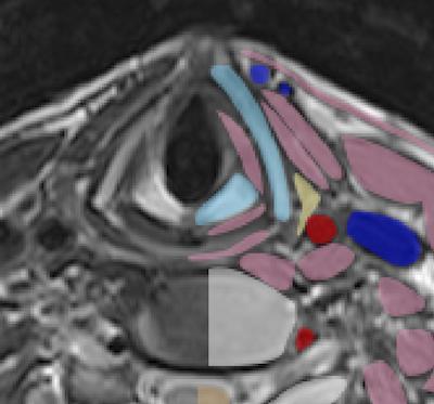 neck anatomy mri