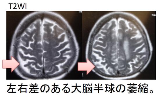 大脳 皮質 基底 核 変性 症 【医師監修】大脳皮質基底核変性症(CBD)とは|診断基準・進行過程・...