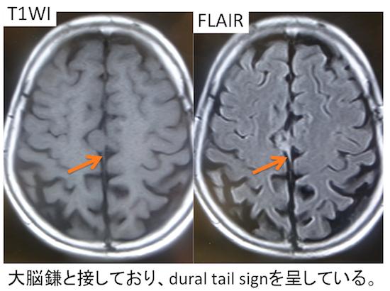 髄膜腫とは?CT,MRI画像診断のポイントは?