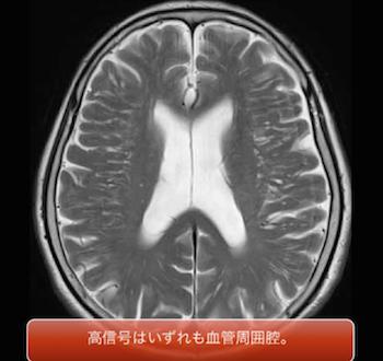 脳MRIで見られる血管周囲腔とは?画像のポイントは?