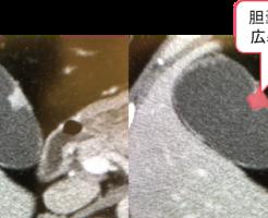 磁器 様 胆嚢