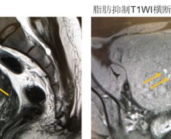 子宮腺筋症の MRI 画像
