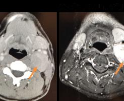 paragangliomaのCT、MRI画像