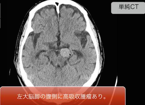 http://xn--o1qq22cjlllou16giuj.jp/wp-content/uploads/2014/08/giant-aneurysm.png