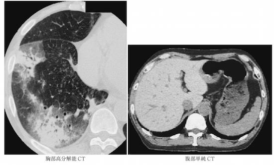 気管支拡張症とは?CT画像診断のポイントは?