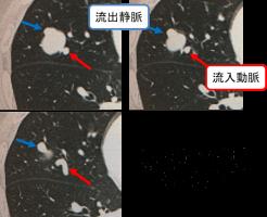 肺動静脈奇形瘻のCT画像