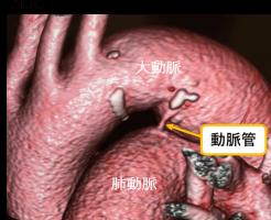 動脈管開存のCT画像