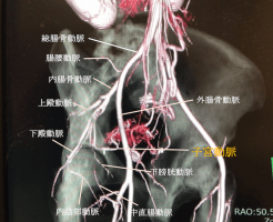 内腸骨動脈の分枝・子宮動脈の解剖のCTAの画像
