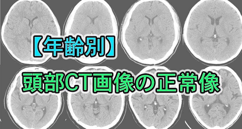 【年齢別】頭部CT画像の正常像