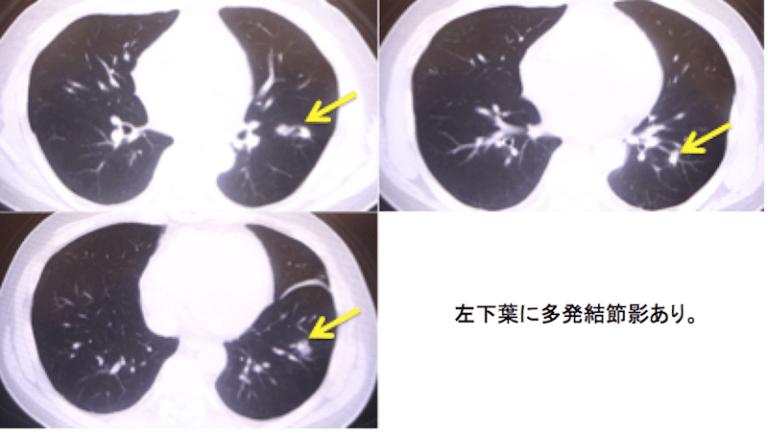 肺クリプトコッカス