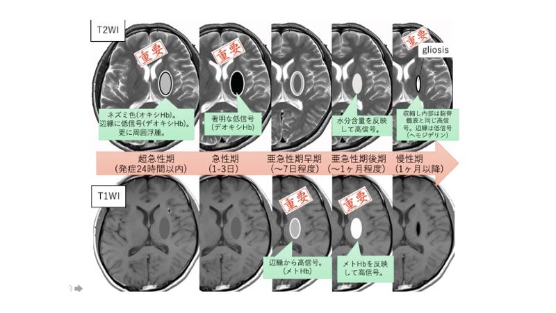 T1WI T2WI 脳出血 継時的変化